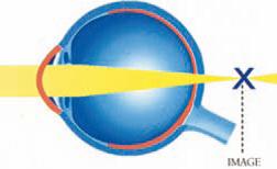 imagehypermétropie
